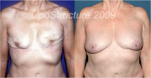 Patient has completely natural appearing breast 6 1/2 years after second fat grafting.