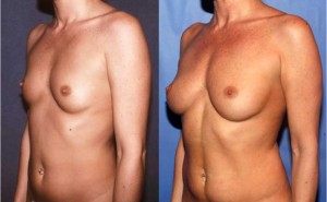Before (left) and 8 years 9 months after one fat grafting procedure of 332 ml to the right and 297 ml to the left.  Patient had 10 pound weight loss between procedures