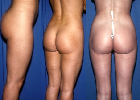 Buttock crease created by suctioning of the buttock/thigh juncture.  This can make a leg look shorter and a buttock look deformed.