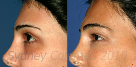 New Procedure for Lightening Dark Eyelid Circles with Your ...