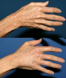 5 years after one fat grafting procedure to the back of the hand.