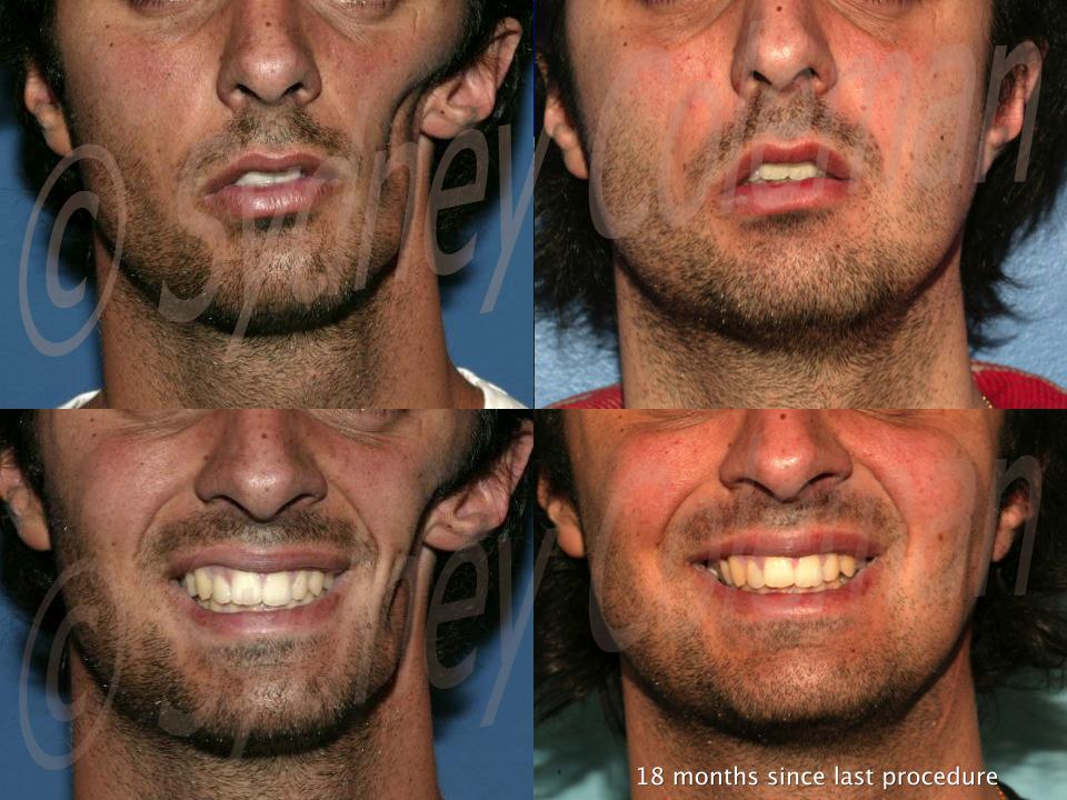 1-4 Smiling