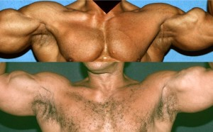 Bodybuilder sustained a biceps tear one year before, resulting in remarkable depression of his left biceps when he flexed (note orange circle). 26 months after the second of two fat grafting procedures, we see not only a nicer aesthetic appearance, but he claimed that he had considerable return of strength in his left biceps.