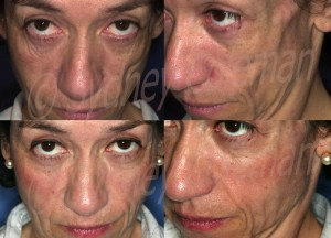 Patient with facial atrophy on the left side of her face, which was treated with two Coleman fat grafting sessions.  After (below) patient returns at 15 months with much fuller, healthier face.  The key to treating this type of atrophy is to avoid over filling.