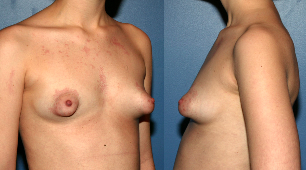 This Woman Just Thought That She Had Small Breasts Until