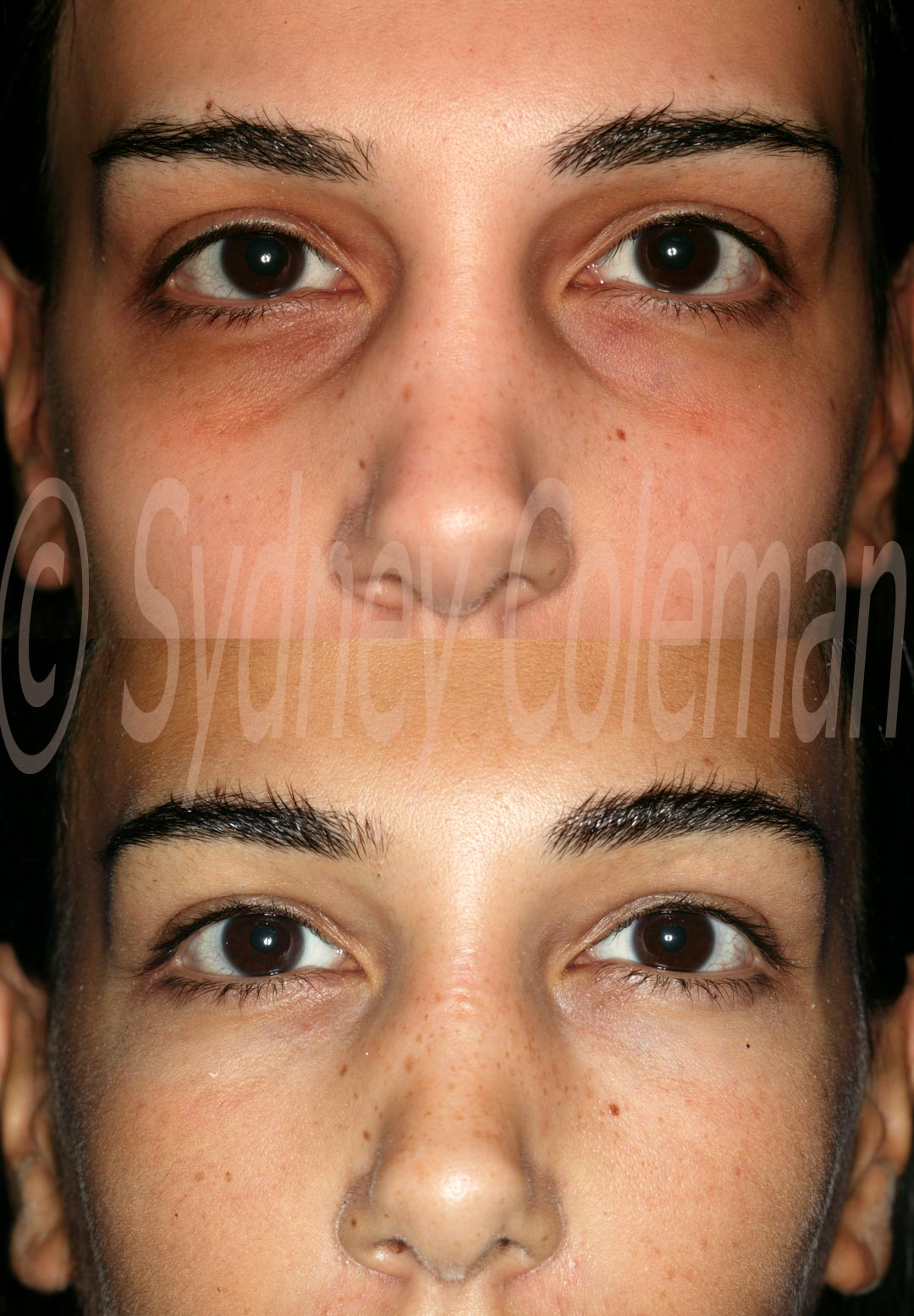 Dark Eyelid Circles A Unique Solution Using One's Own Body ...