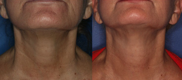 One year after one Coleman fat grafting.  Ultherapy would have improved her result.
