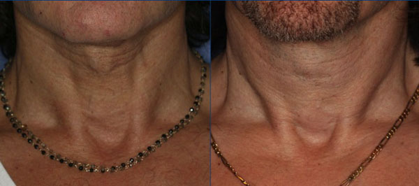 3 years after one Coleman fat grafting to the Neck. Ultherapy has not yet been performed on this patient