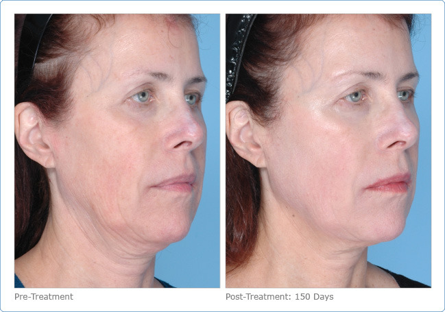 Before (left) and 150 days after (right) Ultherapy treatment (courtesy of Ulthera)