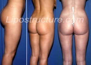 Buttock-crease-deformity-extending-out-to-thigh