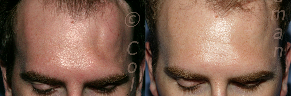 Patient had craniotomy for aneurysm over one year before and was left with a significant dent in his left temple going up into his hairline. He also had strange sensations in the area. 2 ½ years after the second of two procedures, the patient not only has a smoother skull, but also his nerve sensation problems have improved.