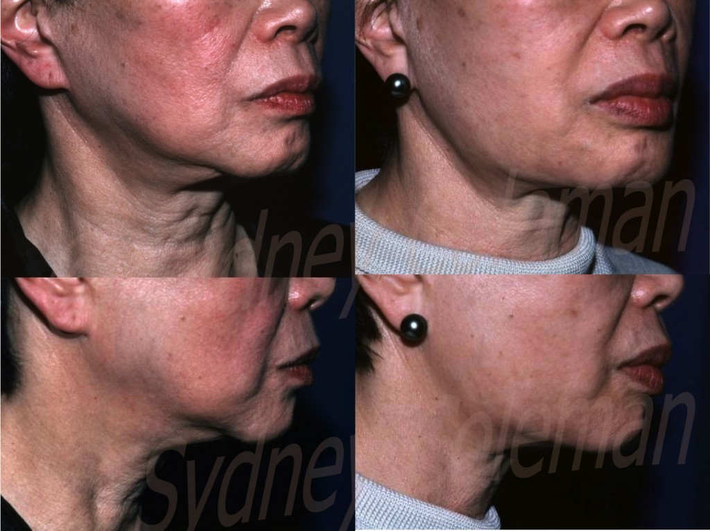 The ability of fat grafting to restore a normal jaw line after aging and facelift is demonstrated in this one year follow-up (right). Note the straightening of the jaw line by placing fat both in front of and behind the jowls