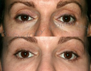10 months after placement of subtle fullness into the upper and lower eyelids. Please note that the fullness below the brow gives a more rested, calm appearance. Placement into the temple gives the outer eyebrow a more appealing shape.