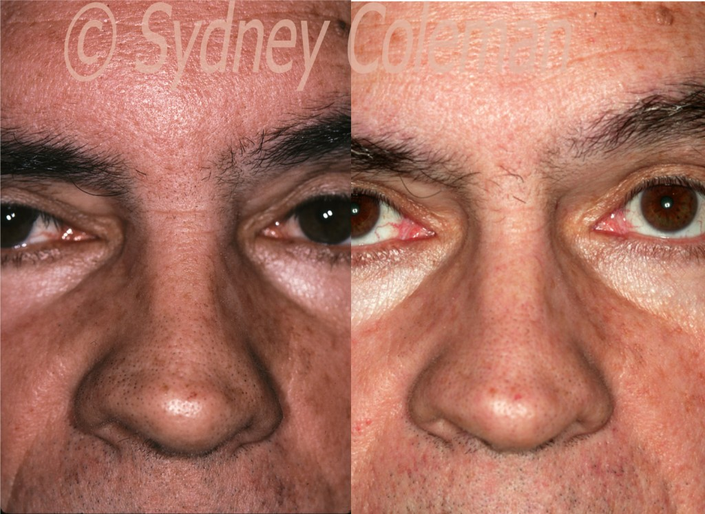 Nose Gallery - TriBeCa Plastic Surgery