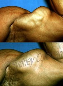 Biceps-26mo-wm1-222x300