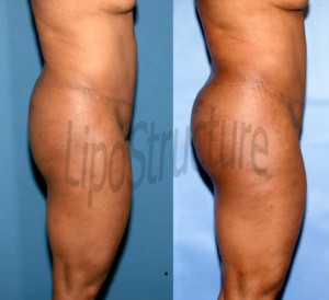 7 months after one fat grafting to the buttock with removal from the back and abdomen.