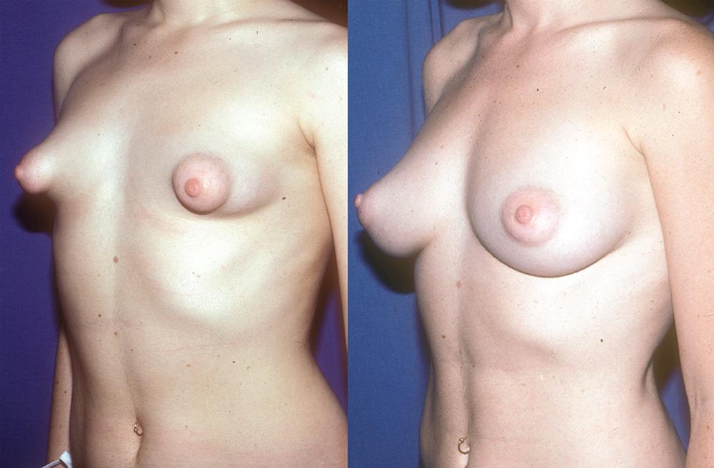 Формы женской груди фото 69696 фотография