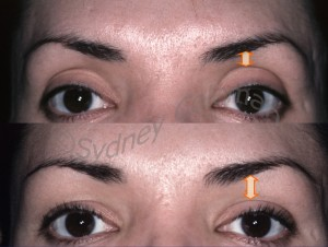 Before and 3years after placement of fat into her upper eyelids and temples. While softening the hollow upper eyelids, filling the area makes the eyebrow look higher. Placement of fullness into the temple makes her outer eyebrows more visible. The acne scarring has also improved.16 months after the addition of a subtle amount of fat grafts to the left upper eyelid. Filling of the area below the eyebrow tightens the loose wrinkled upper eyelid skin. Structural fullness into the temple and outer brow raises the outer brow and makes it more visible from the front view.